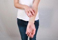 Кожный зуд: причины появления и лечение