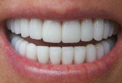 Как вернуть зубам белизну?