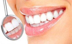 Распространенные разновидности отбеливания зубов