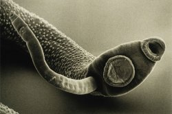 Токсоплазмоз - инфекционная болезнь