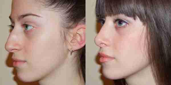 Как уменьшить нос в домашних условиях с помощью